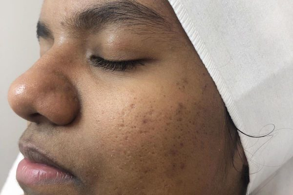 skin treatment for dark skin